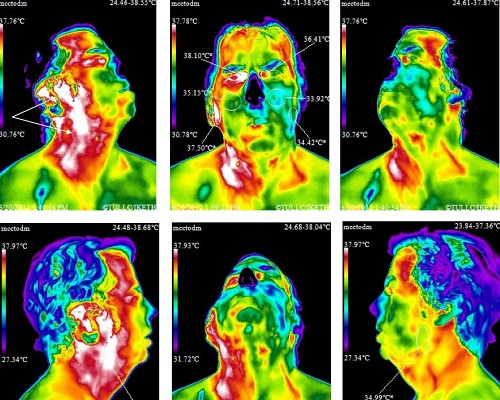 Cell Phone Face Radiation Map